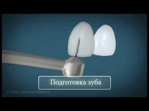 Керамические виниры и ультраниры на зубы