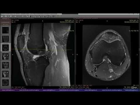Unde să tratezi coxartroza articulației șoldului