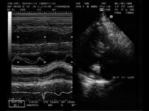 Tumor-like Calcification Of The Mitral Annulus