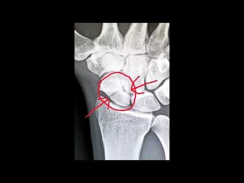 A térd artrózisával járó fájdalom csökkentése