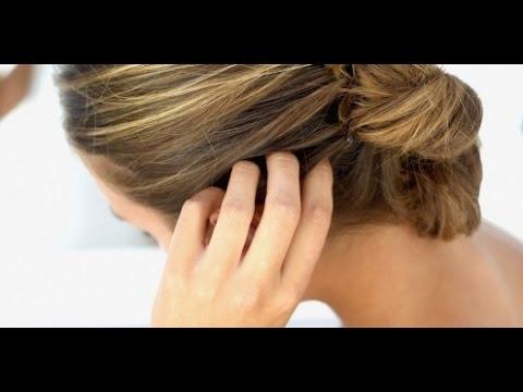 Remédios de gente em dermatite atopic