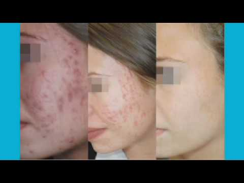video Acne behandeling (PDT) thumbnail