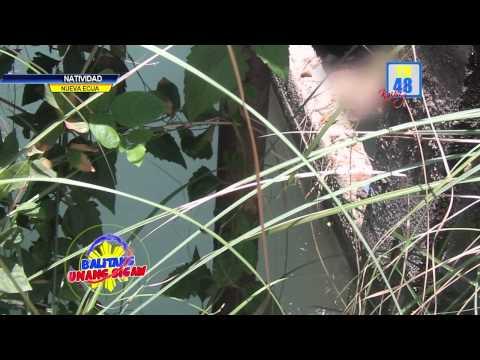 Ang pinakamahusay na paggamot para sa kuko halamang-singaw
