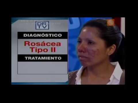 Caso de Soledad resuelto en DR TV. Antes y después de Rosácea.