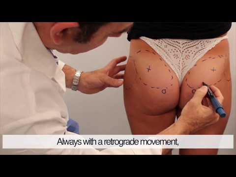 Buttocks volume augmentation with HYAcorp MLF2