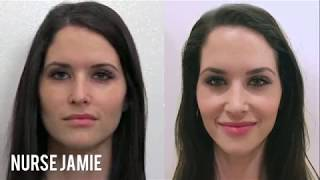 Before and After Facial Cupping - Nurse Jamie on E! News