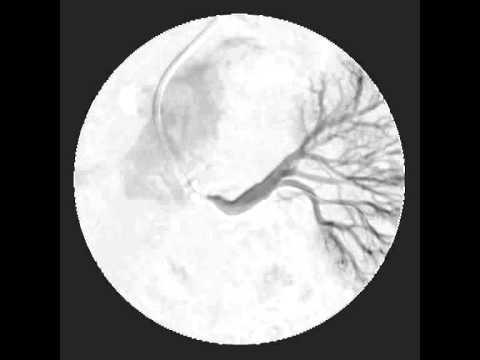 Perché ferito larticolazione dellalluce