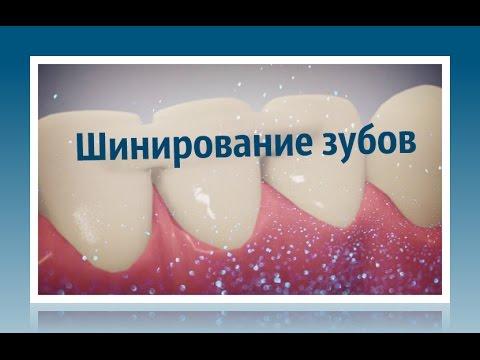 Стоматология. Шинирование зубов
