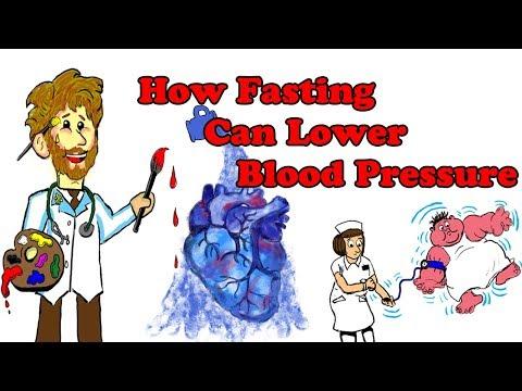 Cavinton bei der Behandlung von Bluthochdruck