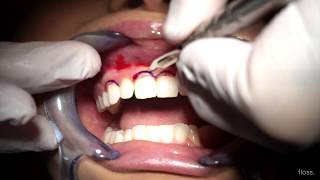 what is a gum lift? | floss.