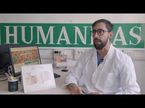 Influenza con complicazioni sulle articolazioni