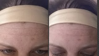 Crazy Before After Back to Before Forehead Wrinkle Cream - Disappear in 2 Minutes!