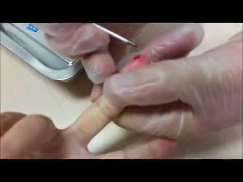 Cómo tomar una prueba de sangre para el azúcar a los niños menores de un año