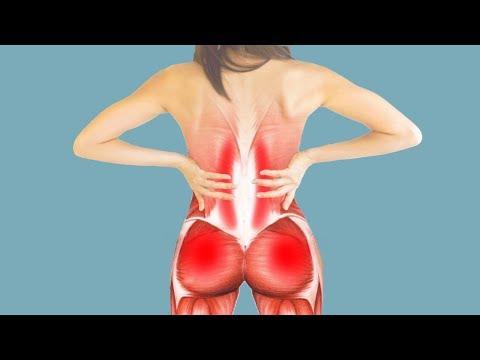 Зоны иррадиации боли при синдроме подвздошно-поясничной мышцы и симптомы её поражения