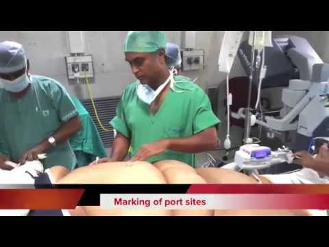 Robotic Gastric Bypass Bariatric Surgery