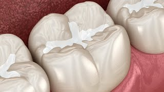 Реставрация зуба , силиконовым ключем .пломба на зуб.