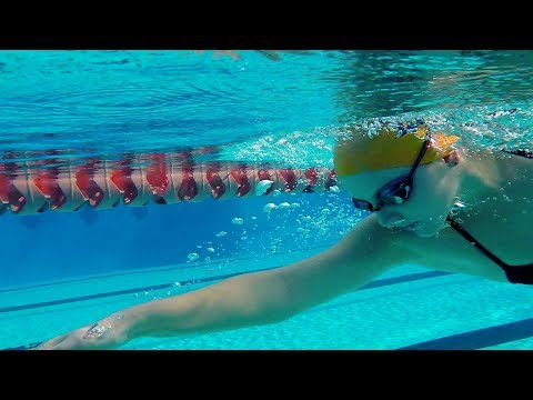 Alexis Riley: A Swimmer's Journey with Orthopedic Surgery