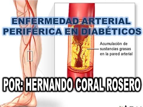 Diabetes picazón en los pies