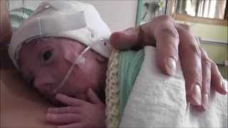 Barnaby: Tiny Miracle (Amazing story of a premature baby born at 27 weeks) (UK)