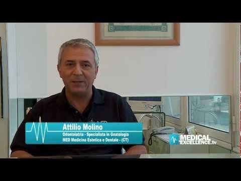 Trattamento topico di osteoartrite