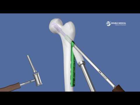 Tratamiento de osteocondrosis