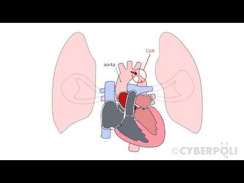 Fokhagyma a magas vérnyomás kezelésére emberek jogorvoslatok