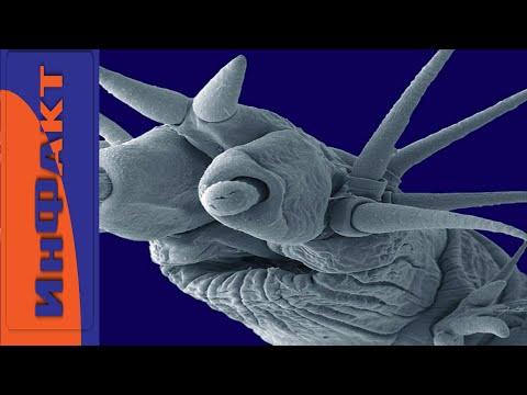 I parassiti della persona analizzano per nascita