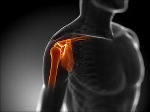 Rückenschmerzen während der Piste