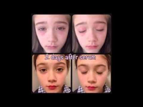 Le psoriasis ordinaire chez les enfants