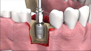 Имплантация зубов: виды, техника операции и цены