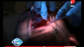 أحدث طرق زراعة الأسنان مع الدكتور نبيل السباعي في دريم كلينيك تحميل MP3