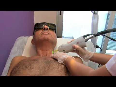 Erkeklerde lazer epilasyon ücreti nasıl belirleniyor ?
