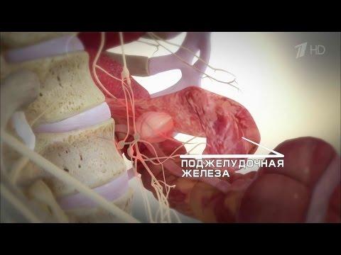 Как дальше жить. Рак поджелудочной железы.  Здоровье.  (13.12.2015)