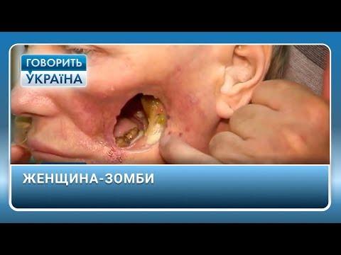 Лечение в домашних условиях хронического простатита