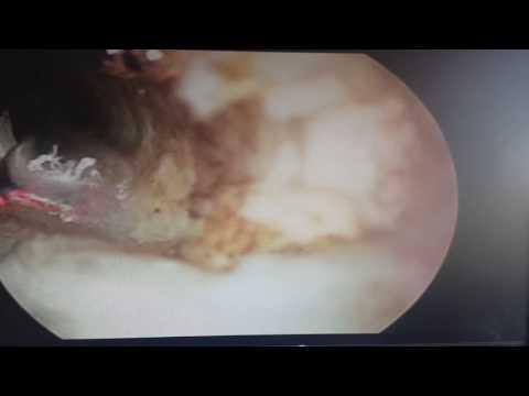 Sangue nelle urine biopsia prostatica