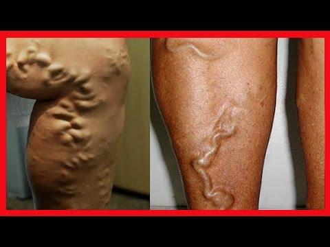 Imunologia de dermatite atopic