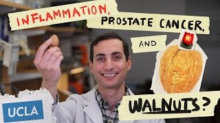 Inflammation, Prostate Cancer and.. Walnuts?