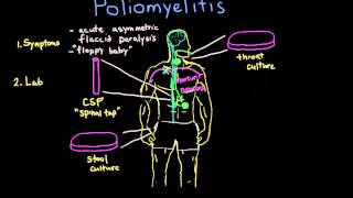 Poliomyelitis: Diagnosis and Treatment
