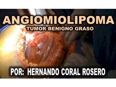 Human papillomavirus squamous cell carcinoma