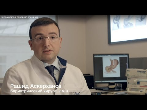 Как похудеть с помощью операции