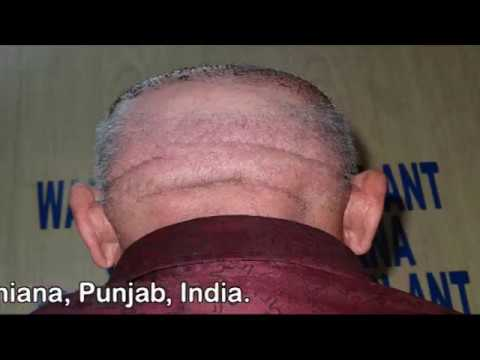 Successive Hair Transplant of 85 year Old Male