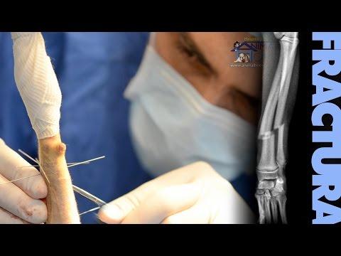 Cirugía de Fracturas en Perros y Gatos AFEE
