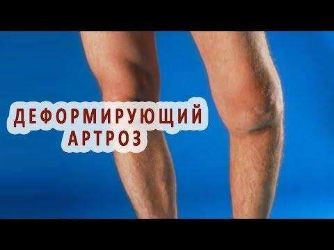 Чем снять боль в суставе локтя