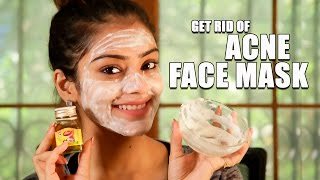 Get Rid Of Acne Naturally | Face Mask for Acne | Home Remedy | DIY Acne Removal | Foxy | Skin Care
