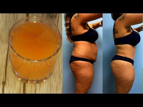Les bêta-bloquants empêchent la perte de poids
