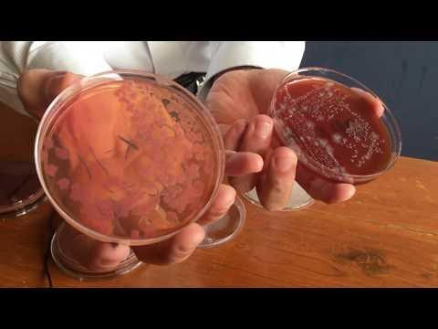 Pinworms sunt infecțioase pentru oameni