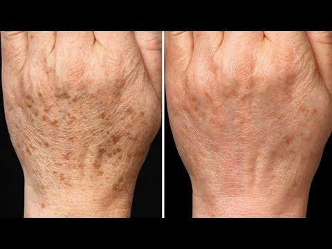 Die Pigmentation auf der Haut der Hände die dunklen Flecke