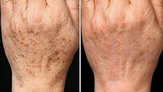 4 Best Ways to Remove Age Spots Naturally