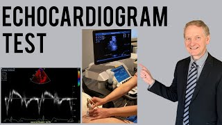 Echocardiogram Procedure | Heart Ultrasound | Everything you need to know