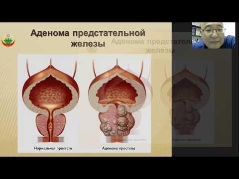 Как заболеть простатитом